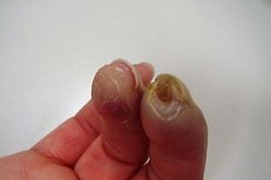 指先の循環障害による潰瘍