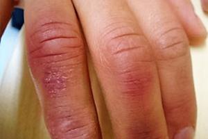 皮膚の湿疹