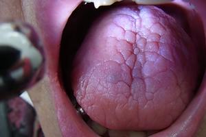 舌の静脈拡張