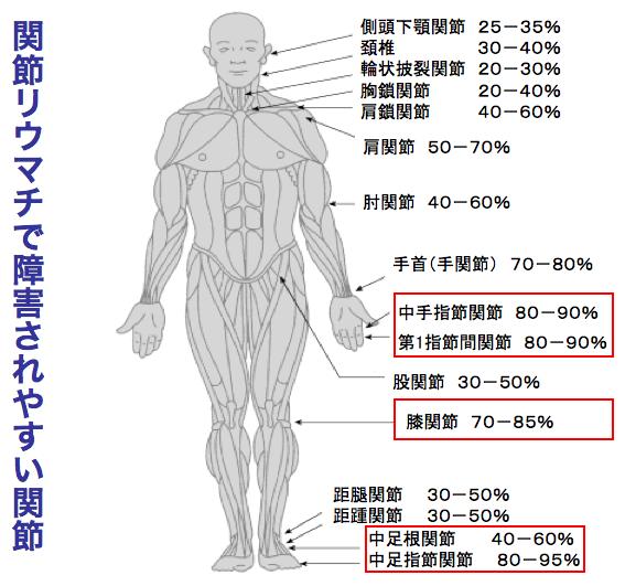 関節リウマチで障害されやすい関節
